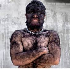 Hypertrichosis or werewolf syndrome-blindmaiden-4